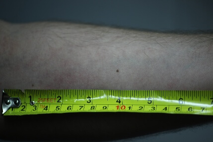 https://static.bed-bugs.co.uk/uploads/2018/06/bed-bug-bite-treatment-how-long-do-bites-last.jpg